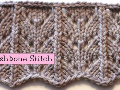 Fancy Stitch Combo - Wishbone Stitch