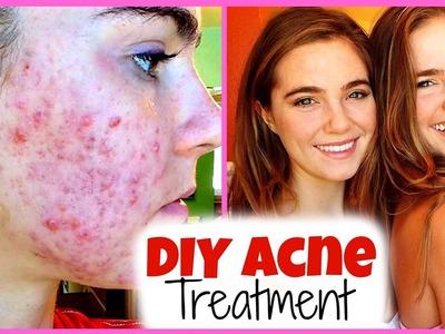 DIY Acne Treatment with Nina and Randa!