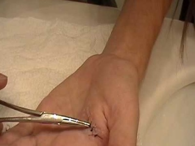 The cheap way of taking stitches out :)