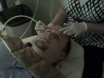 Wgrq james gets microdermabrasion