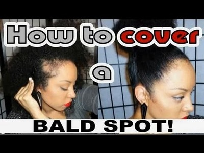 How to HIDE a BALD SPOT. My (NATURAL) Hair Secret