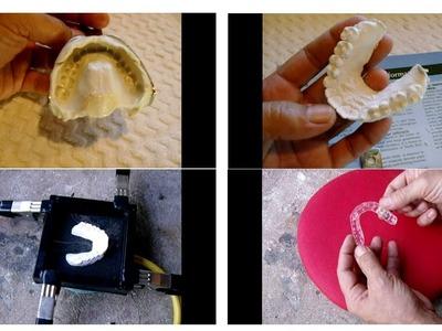DIY Professional Dental Retainers.Whitening Trays