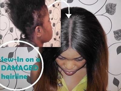 Sew-In on DAMAGED hairline - How I do it!