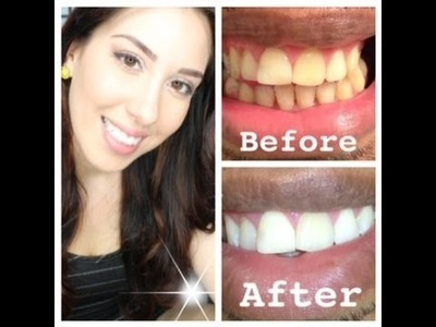 How to whiten EXTREMELY yellow teeth at home (with actual pictures)