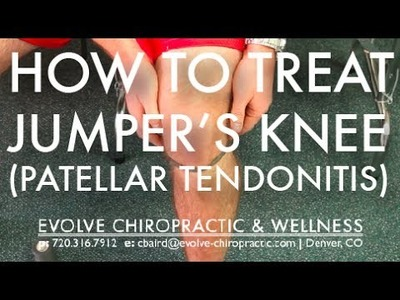 Easy Treatment for Jumper's Knee (Patellar Tendonitis) - Denver Sports Chiropractor