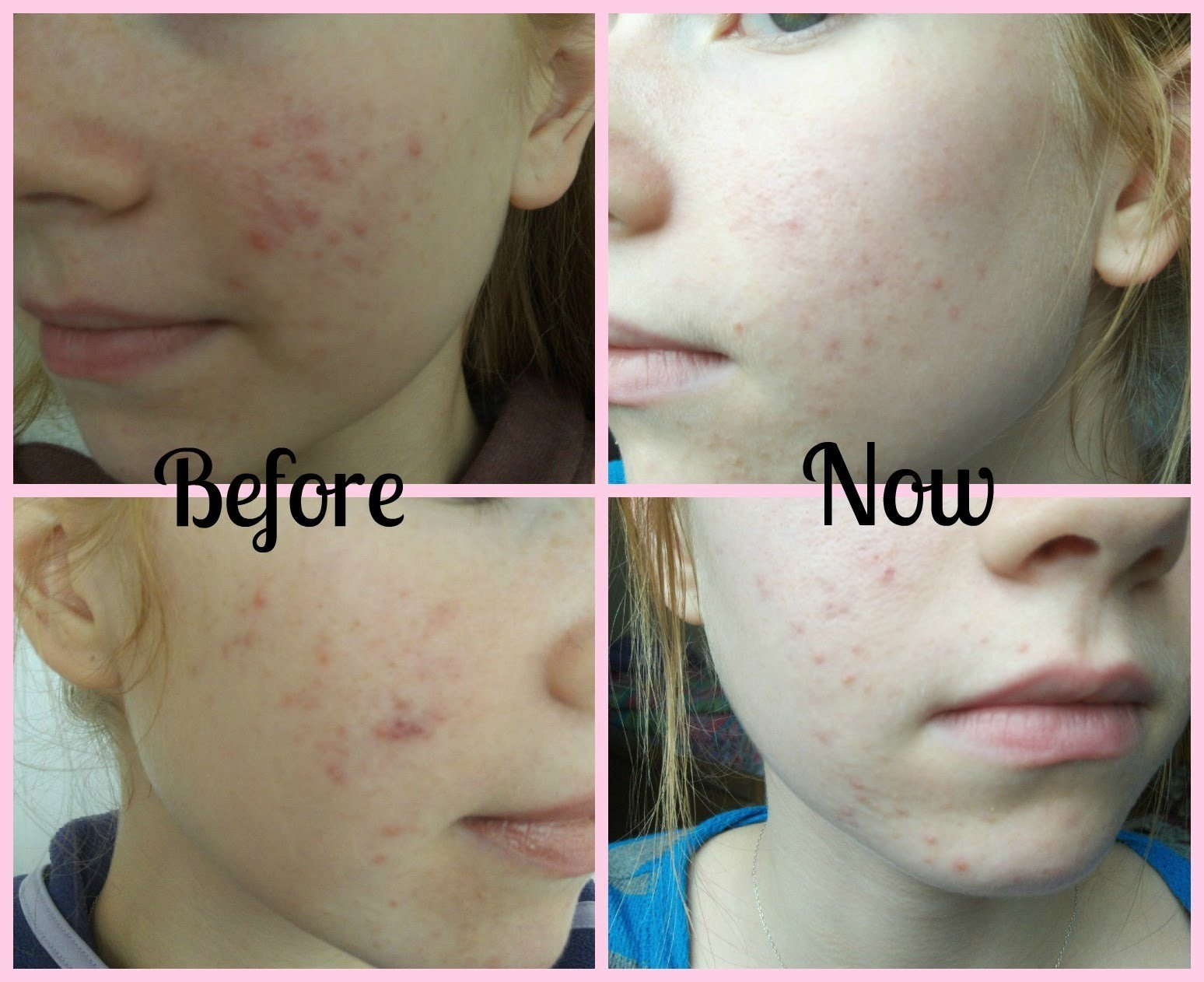 My Natural Skin Care Routine For Acne - Part 1! How to Clear Acne Naturally ♥