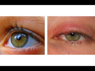 HOW TO CURE AN EYE INFECTION IN 24 HOURS!