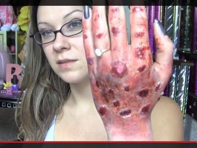 Third Degree Burn- Special Effects Halloween 2013 Tutorial (DIY QUEEN)