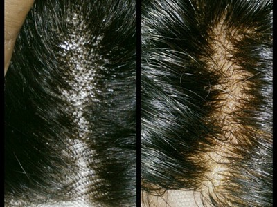 How to: Bleach Knot and Prevent Shedding on Lace closure