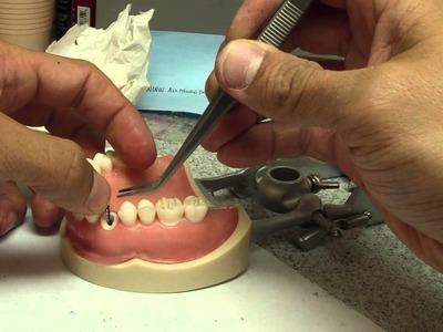 How to Make a Quick Provisional (Temporary) Restoration