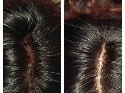 DIY How to :Create A REALISTIC  Lace Closure (****