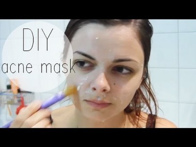 DIY Facemask for Acne-prone skin