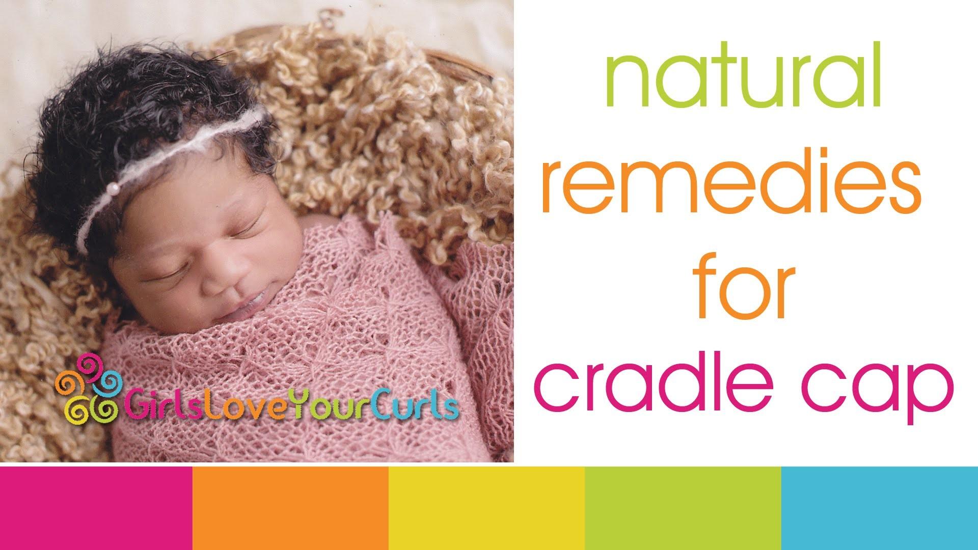 ♥ 52 ♥ Baby Hair Care - Natural Remedies for Cradle Cap