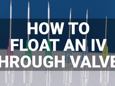 How to Float an IV Through Valves