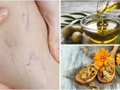 How to Get Rid of Varicose Veins With Olive Oil and Marigold Treatment ! Natural Remedies